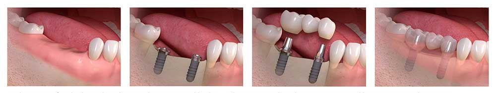 Bridge Implants by Mallette Dental, Canton Ohio