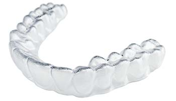 ClearCorrect Orthodontic Aligner - Mallette Dental