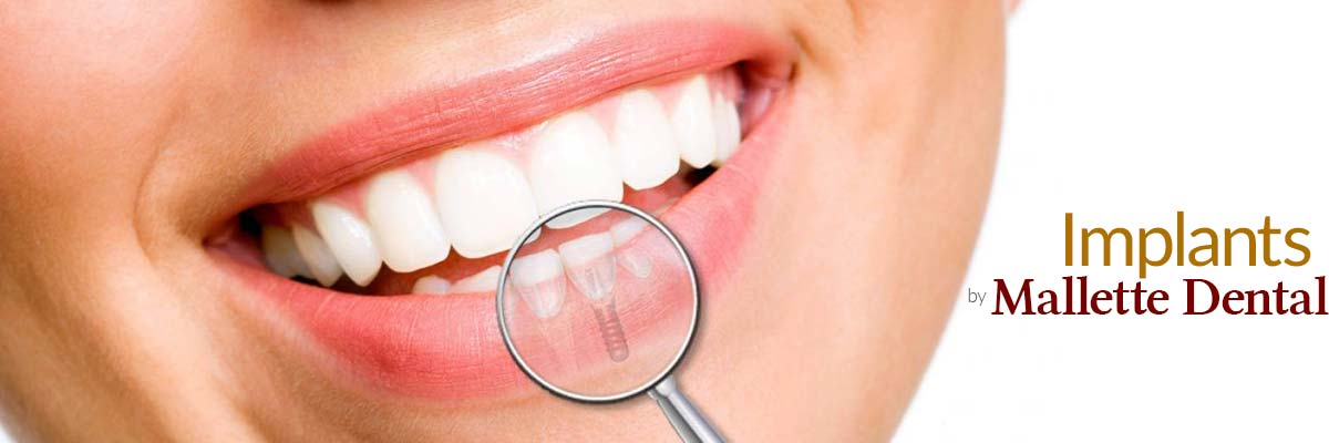 Dental Implants by Mallette Dental Canton Ohio