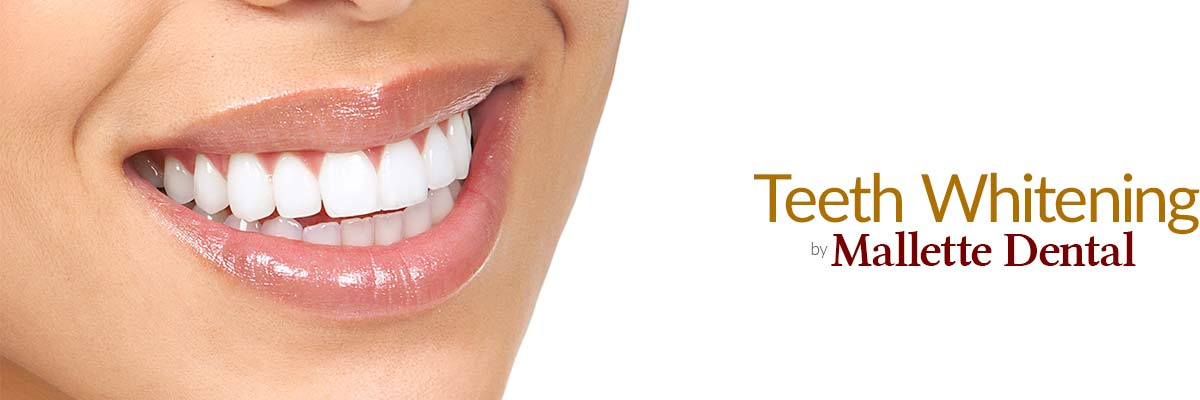 Teeth Whitening by Mallette Dental Canton Ohio
