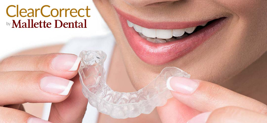 Clear Correct Orthodontics by Mallette Dental Canton Ohio