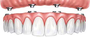 Implant Dentures from Mallettte Dental